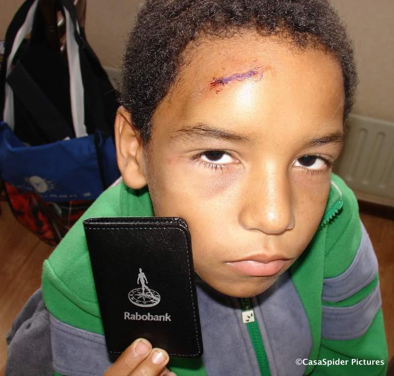 20.08.2008: Luchiano (10) is door een vrouw bij een fietsongeval op het Turfpad tegen het asfalt gesmakt. Klik voor groter.